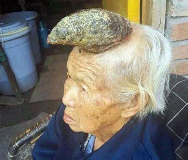 87-летняя китаянка с 13-ти сантиметровым