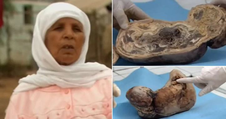 Плод весил 3,2 килограмма и имел длину 42 см.