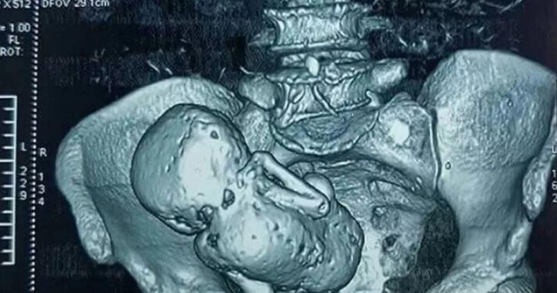 Окаменелый ребенок-литопедион.
