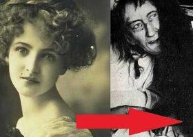 Красавица Бланш Моннье была прикована в комнате 25 лет