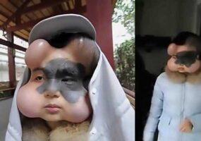 Девушка в Китае проходит необычную процедуру