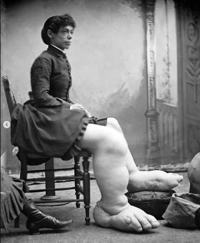 Помимо огромных ног, девушка была вполне симпатичной.