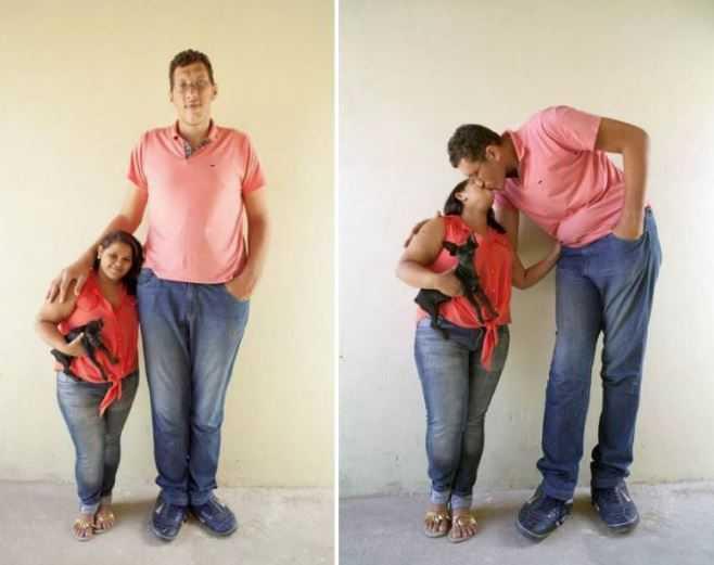 Джоэлисон, у которого в детстве развился гигантизм, говорит о себе: